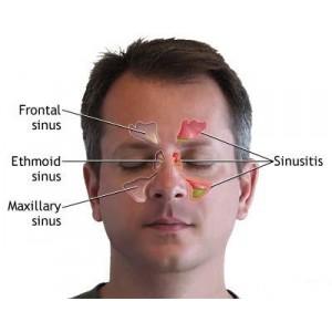 acupunctura bucuresti medic chinez